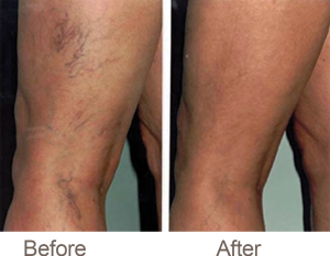 Spider Veins Treatment Lexington KY
